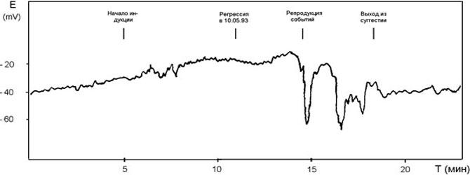 Мониторинг электродермального потенциала у пациента С в процессе гипнорепродукции событий, имевших место 10.05.1993